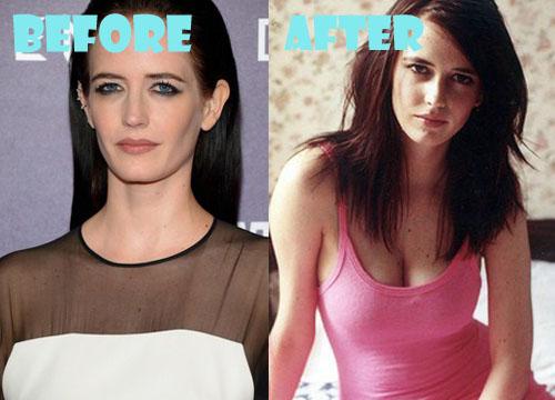 Eva Green Plastic Surgery Breast Implant