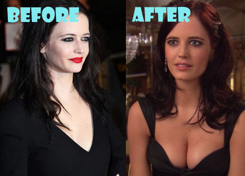 Eva Green Plastic Surgery