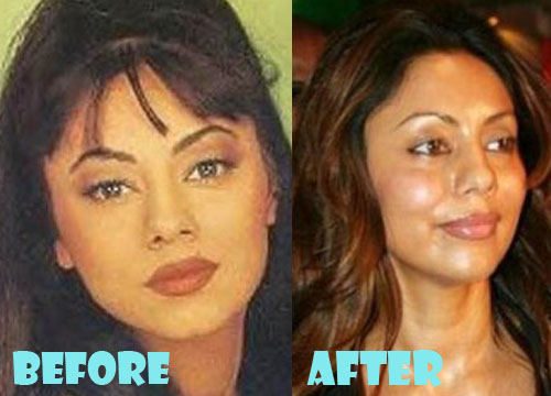Gauri Khan Plastic Surgery Facelift