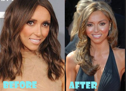 Giuliana Rancic Plastic Surgery Botox