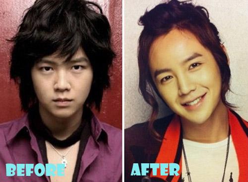 Jang Geun Suk Plastic Surgery Nose Job