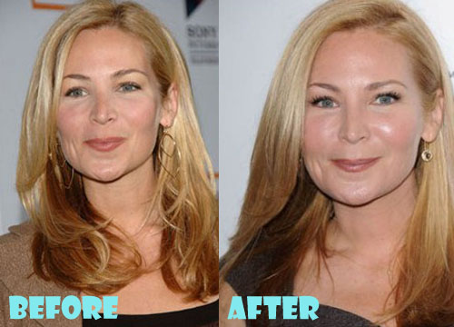 Jennifer Westfeldt Plastic Surgery Botox, Cheek Augmentation, Facelift