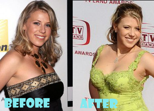 Jodie Sweetin Plastic Surgery Breast Implant