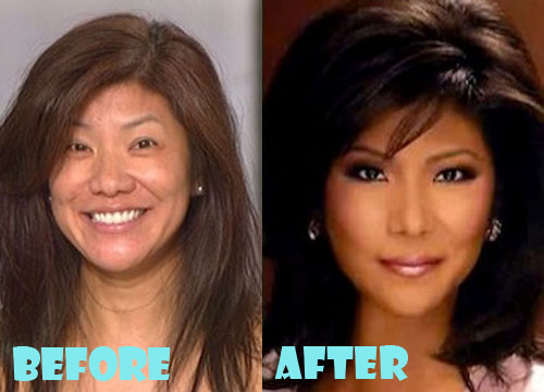 Julie Chen Plastic Surgery Nose Job