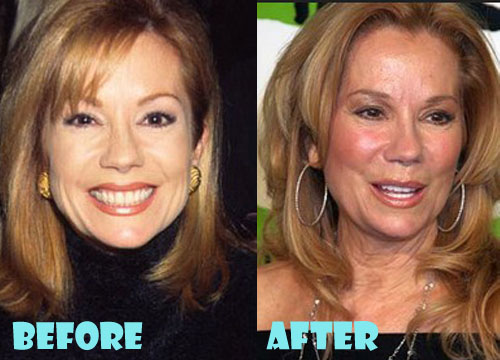 Kathie Lee Gifford Plastic Surgery Facelift, Facial Filler