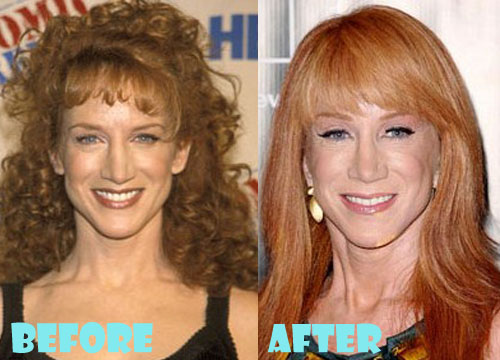 Kathy Griffin Plastic Surgery Botox