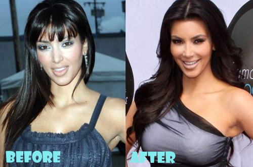 Kim Kardashian Plastic Surgery Boob Job