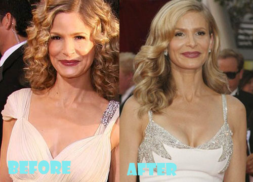 Kyra Sedgwick Plastic Surgery Breast Implant