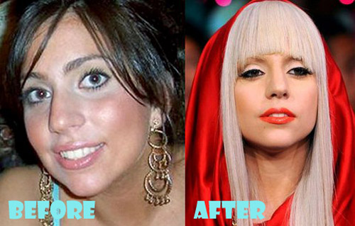 Lady Gaga Plastic Surgery Nose Job