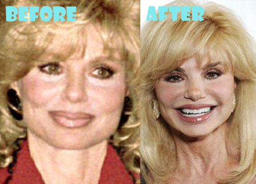 Loni Anderson Plastic Surgery Before and After Pictures