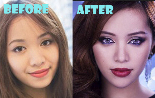 Michelle Phan Plastic Surgery Chin Implant