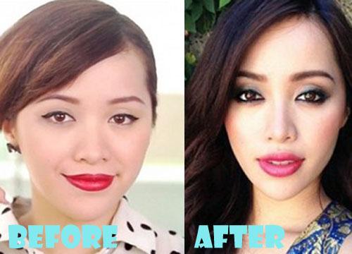 Michelle Phan Plastic Surgery