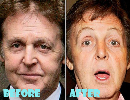 Paul McCartney Plastic Surgery Botox