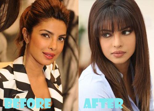 Priyanka Chopra Plastic Surgery