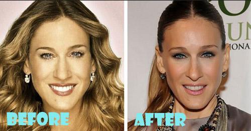 Sarah Jessica Parker Plastic Surgery Nose Job