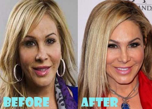 Adrienne Maloof Plastic Surgery Nose Job