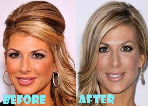 Alexis BellinoPlastic Surgery