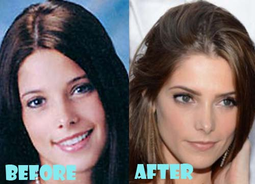 Ashley Greene Plastic Surgery Nose Job