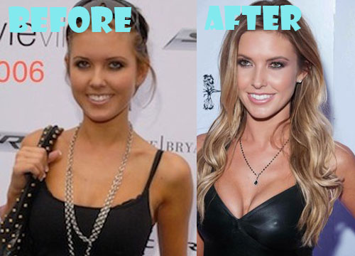 Audrina Patridge Plastic Surgery Boob Job