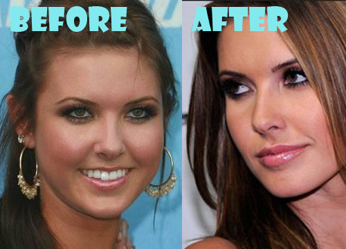 Audrina Patridge Plastic Surgery Nose Job