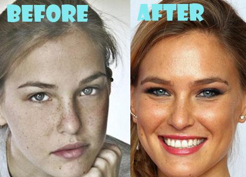 Bar Refaeli Plastic Surgery Nose Job