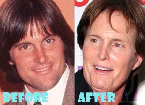 Bruce Jenner Plastic Surgery Botox, Facelift