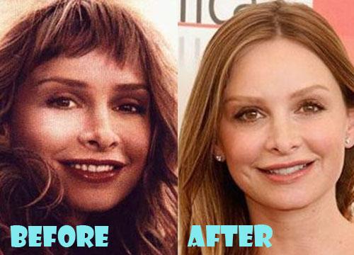 Calista Flockhart Plastic Surgery Nose Job