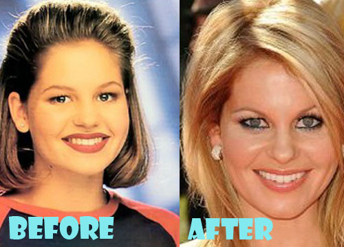 Candace Cameron Plastic Surgery Nose Job
