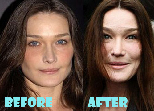 Carla Bruni Plastic Surgery Botox, Facelift