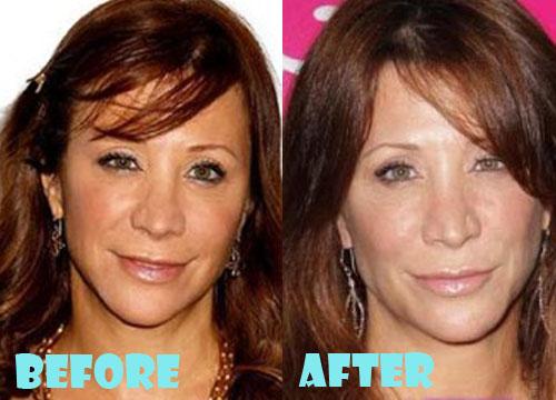 Cheri Oteri Plastic Surgery Botox, Facelift