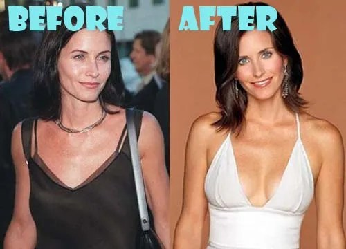 Courteney Cox Plastic Surgery Boob Job