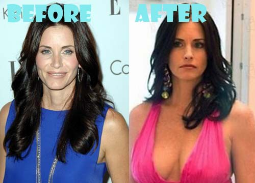 Courteney Cox Plastic Surgery