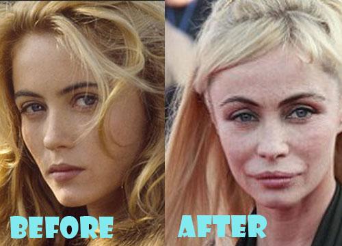 https://i2.wp.com/lovelysurgery.com/wp-content/uploads/2014/10/Emmanuelle-Beart-Plastic-Surgery.jpg?resize=500%2C360