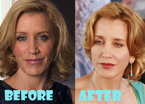 Felicity Huffman Facelift Surgery