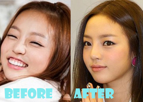 Goo Hara Plastic Surgery Nose Job