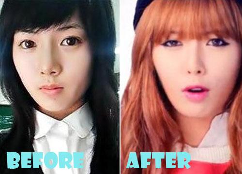 Hyuna Plastic Surgery Nose Job