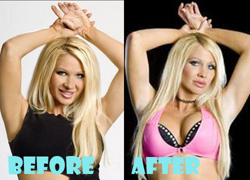 Jillian Hall Plastic Surgery Breast Implant