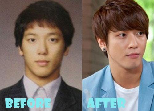 Jung Yong Hwa Plastic Surgery