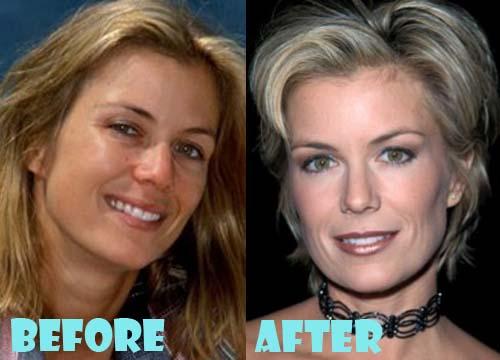 Katherine Kelly Lang Plastic Surgery Botox, Facelift