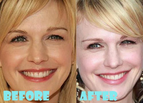Kathryn Morris Plastic Surgery Botox