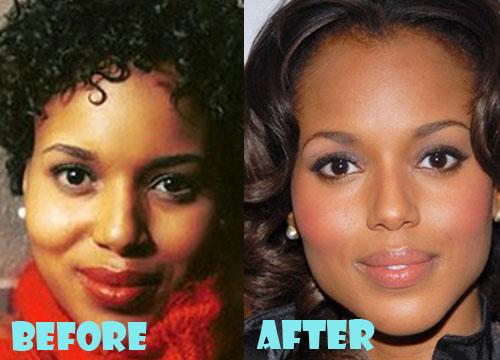 Kerry Washington Plastic Surgery Eyelid Surgery