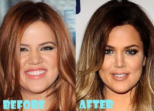 Khloe Kardashian Plastic Surgery Nose Job