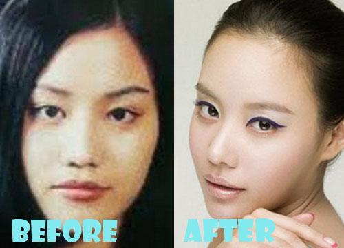 Kim Ah Joong Plastic Surgery