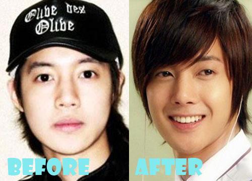 Kim Hyun Joong Plastic Surgery Nose Job