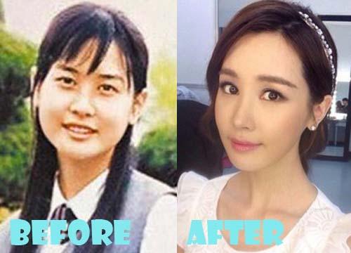 Lee Da Hae Plastic Surgery Nose Job