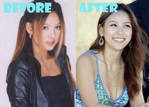 Lee Hyori Plastic Surgery Breast Implant