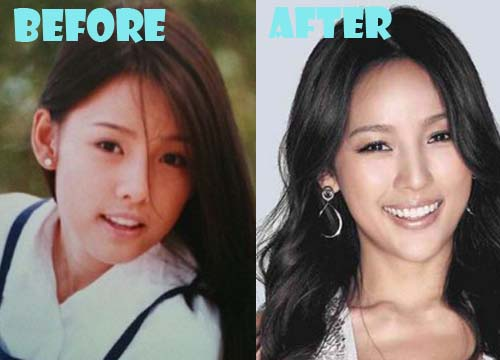 Lee Hyori Plastic Surgery Nose Job