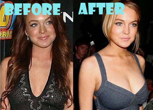 Understood that lindsay lohan breast enlargement casual concurrence