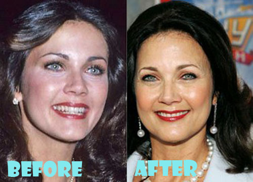Lynda Carter Plastic Surgery Botox, Facelift