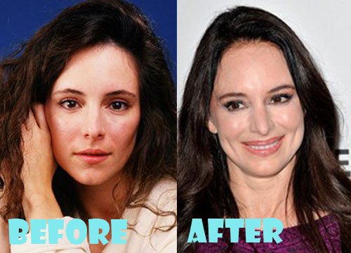 Madeleine Stowe Plastic Surgery Lip Augmentation